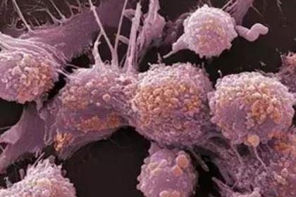 """为什么""""海拉细胞""""可以永生?它为人类做了多大贡献?"""